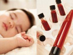 Як беруть кров з вени на аналіз у немовляти