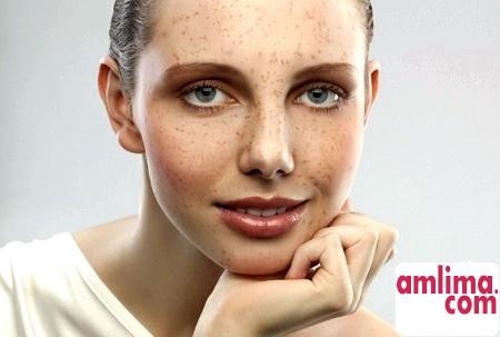 Як позбутися від пігментації на обличчі за допомогою пілінгу