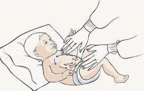 Фото - коліки у немовлят що робити