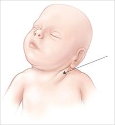 Кривошея у немовлят: причини і методи лікування (масажгімнастика)