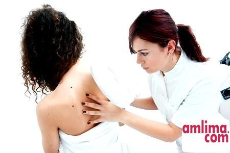 Меланома - ознаки захворювання