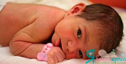 Фото - новонароджений з волоссячком на тілі