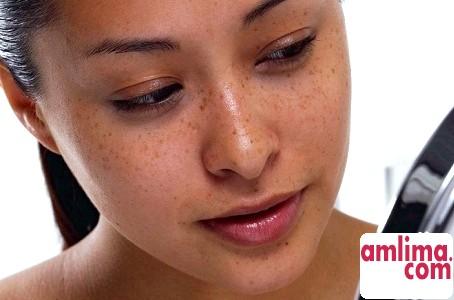 Пігментація на обличчі: лікування в домашніх умовах