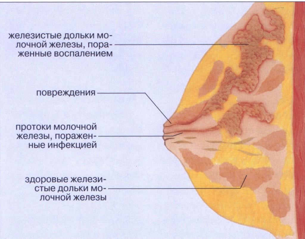 Ознаки і лікування лактостазу в домашніх умовах