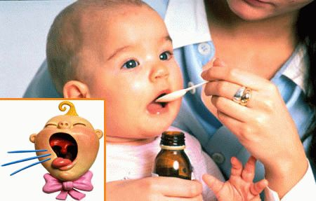 Сухий кашель у немовляти - як і чим лікувати