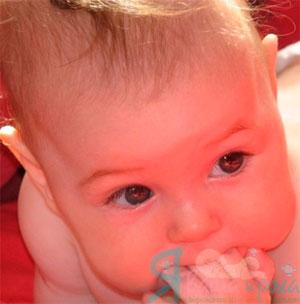 Все про рахіті у грудних дітей: симптоми, причини, лікування (профілактика і вітаміни). Наслідки рахіту